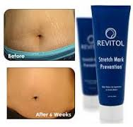 Finest stretch mark removal cream