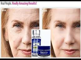 Choose Revitol Phytoceramide Product